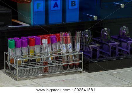 Sputum Genexpert Test For Mycobacterium Tuberculosis