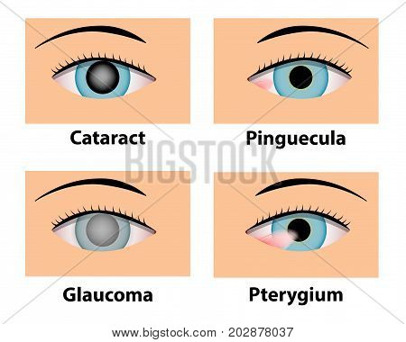 Cataract Pinguecula Glaucoma and Pterygium vector eye care
