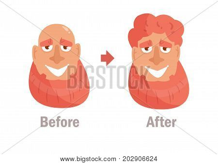 Hair transplant, wig. Vector. Cartoon. Isolated art on white background. Flat Before and after