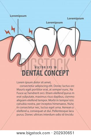 Impacted Tooth Inside Under Inflammation Gum Frame Cartoon Style For Info Or Book Illustration Vecto