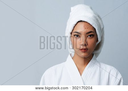 Comparison Portrait Of Beautiful Asian Woman. Dark Spots And New Skin, Before - After Skin Care And