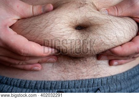 Closeup Overweight Man Body With Hands Touching Belly Fat.  Man Grabbing The Fat Of His Stomach. Unh