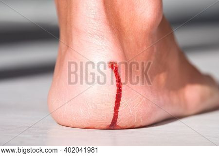 Mans Heel With Painful Bloody Callus. The Problem Of New Uncomfortable Shoes.