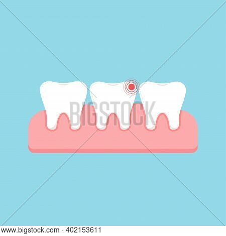 Tooth With Ache Pain And Healthy In Gum Isolated On Blue Background. Sick Human Teeth, Dent Hygiene,