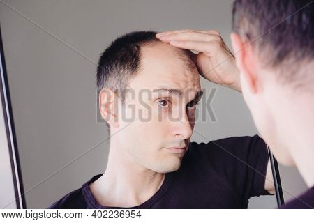 Male Pattern Hair Loss Problem Concept. Young Caucasian Man Looking At Mirror Worried About Balding.