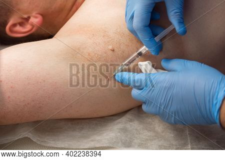 Surgeon In Gloves Gives Injection Of Local Anesthesia To Patient Before Laser Removing Of Moles Or P