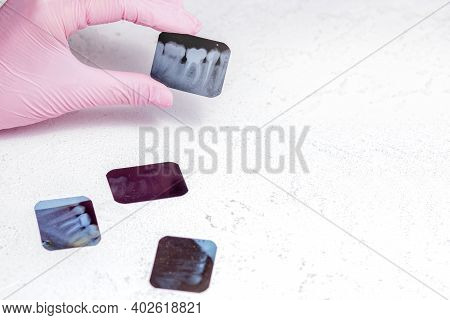 Doctor Holding And Looking At Dental Photo X-ray Images On The X-ray Film Depicts The Roots Of The T