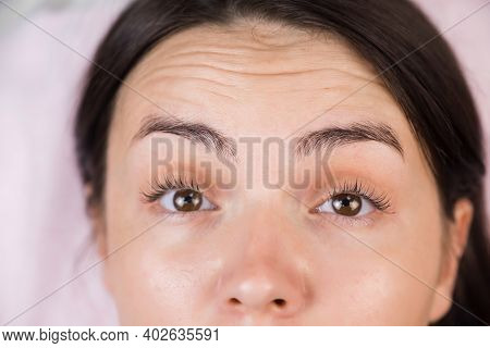 Forehead Of Young Woman With Deep Mimic Wrinkles Before Lifting Injections, Closeup View. Female On