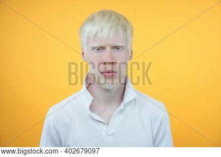 Albinism Sad Albino Man White Skin Hair Studio Dressed T-shirt Isolated Yellow Background. Abnormal