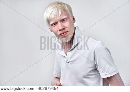 Albinism Albino Man White Skin Hair Studio Dressed T-shirt Isolated White Background. Abnormal Devia