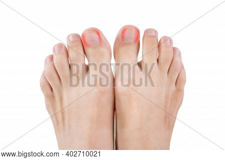 Ingrown Toenails On A Woman's Foot, Isolated On White Background, Pain In The Big Toe