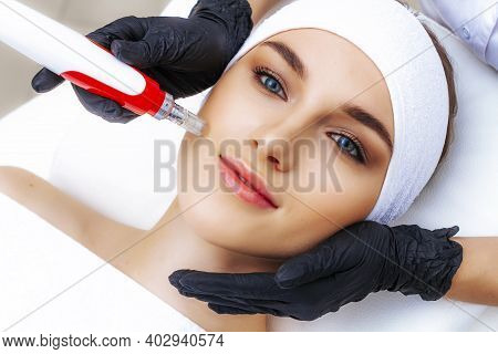Dermapen Apparatus In The Hands Of A Beautician. New Skin Rejuvenation Procedure. Fractional Mesothe