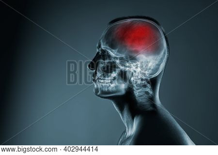X-ray Of A Mans Head. Cerebral Stroke. Brain Damage Is Highlighted By Red Colour.