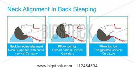 Neck alignment in back sleeping