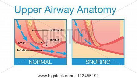 Upper airway human anatomy in sleeping