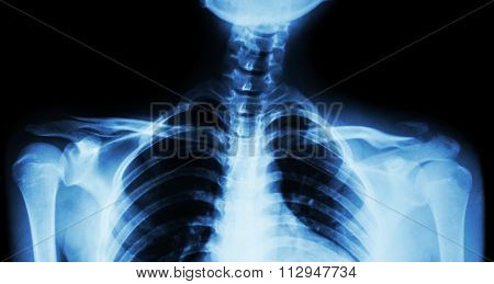 Film X-ray Both Clavicle Ap ( Front View ) : Show Fracture Distal Left Clavicle