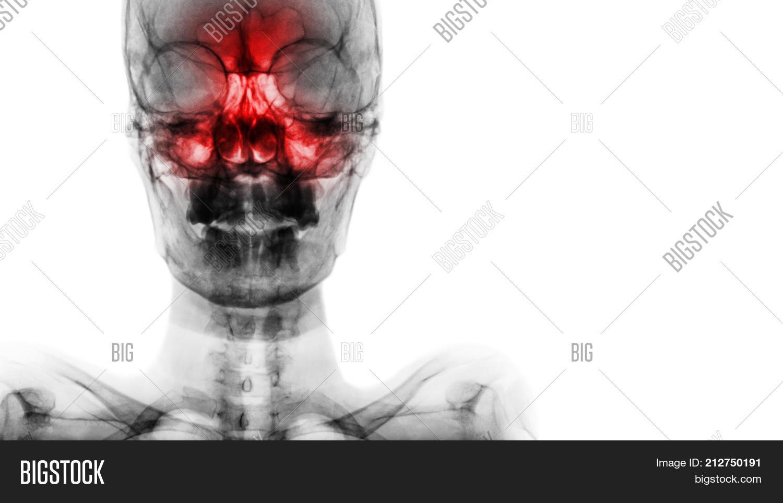 Sinusitis Frontal , Ethmoid , Image & Photo | Bigstock