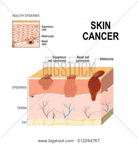 Skin cancer: Squamous cell carcinoma (disease of older cells on the surface skin) basal-cell cancer (begins in the basal cells) and Melanoma (arises in the pigment cells - melanocytes). layers of human skin and healthy epidermis. Medical diagram