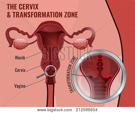 The cervix and transformation zone. Medical infographic. Female reproductive system - uterus, ovary glands and fallopian tubes. Scientific vector illustration in red and pink colors.