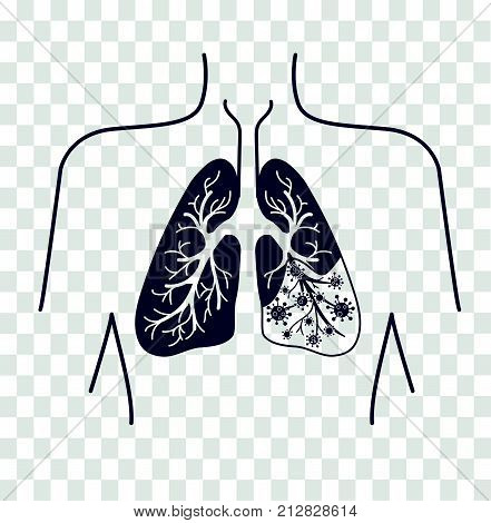 Silhouette Of Lung Disease