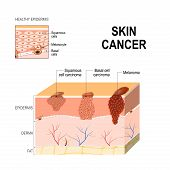 Skin cancer: Squamous cell carcinoma (disease of older cells on the surface skin) basal-cell cancer (begins in the basal cells) and Melanoma (arises in the pigment cells - melanocytes). layers of human skin and healthy epidermis. Medical diagram poster