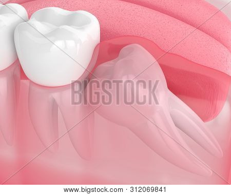3d Render Of Jaw With Wisdom Mesial Impaction Over White Background. Concept Of Different Types Of W