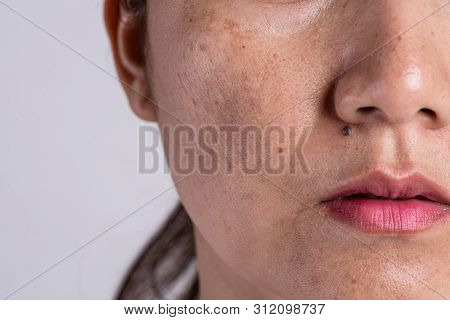 Woman With Problematic Skin And Acne Scars. Problem Skincare And Health Concept. Wrinkles Melasma Da