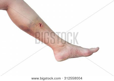 Caucasian Woman's Leg With A Dog Bite Wound In The Calf On Isolated White Background. Female Leg Wit
