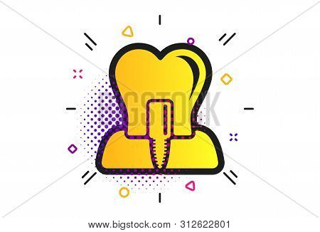 Tooth Implant Icon. Halftone Dots Pattern. Dental Endosseous Implant Sign. Dental Care Symbol. Class