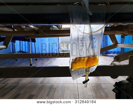 Selective Focus Of Urine Or Pee Catheter Bag Hang Under Patient Bed In Hospital, On Dark Background