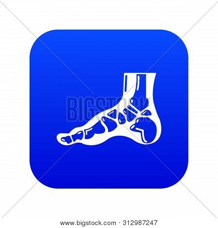 Xray Of Foot Icon. Simple Illustration Of Xray Of Foot Vector Icon For Web.