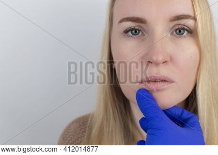 A Woman Examines Dry Skin On Her Lips. Peeling, Coarsening, Discomfort, Skin Sensitivity. Patient At