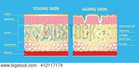 The Diagram Of Younger Skin And Aging Skin Showing The Decrease In Collagen And Broken Elastin In Ol
