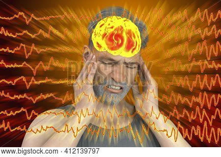 Headache, Migraine, Stroke, Conceptual 3d Illustration Showing A Man With Pain In Head On A Backgrou