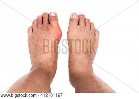 Man With Swollen Deformed Inflammed Left Foot Toe Joint With Painful Gout