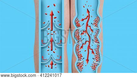 Varicose Veins On A Female Senior Legs. The Structure Of Normal And Varicose Vein.