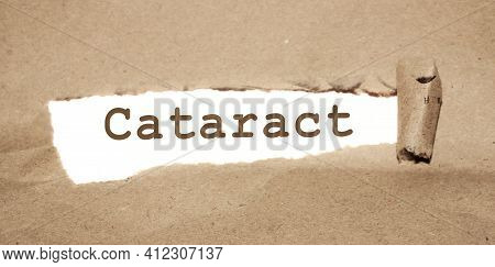 Cataract Word Written Under Brown Torn Paper. Eyes Healthcare Concept