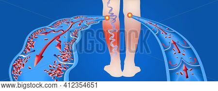 Varicose Veins On A Female Senior Legs. The Structure Of Normal And Varicose Veins. Concept Of Old S