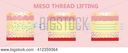 Meso Thread Lift. Young And Old Skin. Lifting By Threads Concept. Vector Illustration