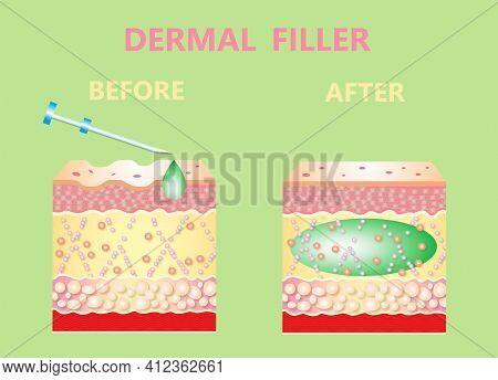 Cosmetic Filler Or Dermal Fillers