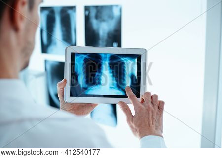 Doctor Examining X-ray Of Chest And Ribs On Digital Tablet.