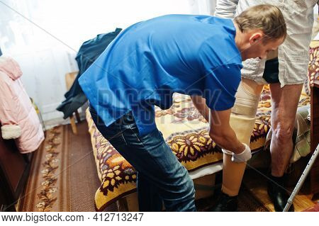 The Prosthetist Removes The Measure From A Person With A Disability, Man With Amputee.