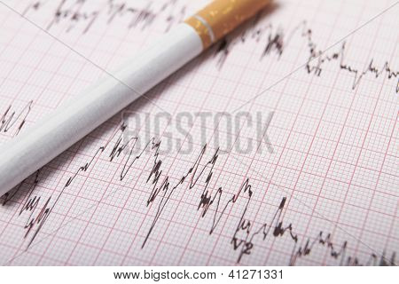 Cigarette On Ecg Printout