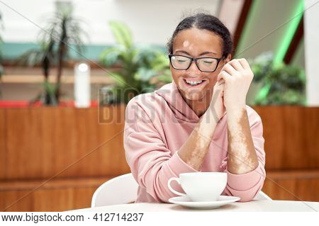 Black African American Woman With Vitiligo Pigmentation Skin Problem Indoor Dressed Pink Hoodie Glas