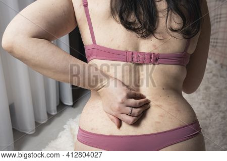 Women With Symptoms Of Itchy Urticaria Or Allergic Reaction On The Skin. Red Rash On The Females Bod