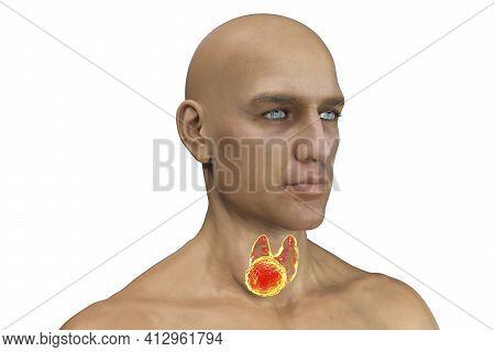 Thyroid Cancer In Men, 3d Illustration Showing Tumor Inside Thyroid Gland