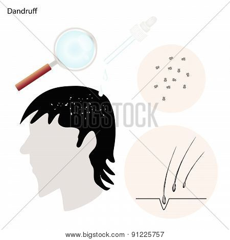 Medical Concept Illustration of Dandruff or Flaky Scalp With Medical Prevention and Treatment . poster