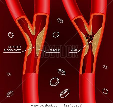 Beautiful vector illustration of blood flow infographic. Abstract medicine concept.