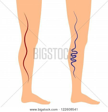 Vector illustration leg veins. The concept of varicose disease. Silhouette of legs on an isolated white background.