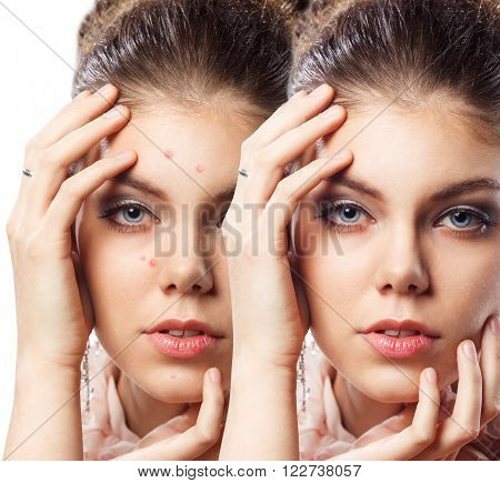 Young beautiful woman with problem skin on her face